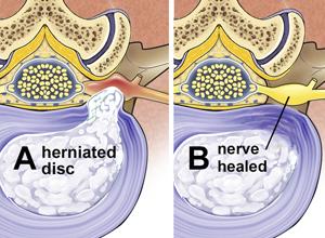 Illustration of nerve pain