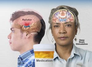Medication, deep brain stimulation, radiation therapy