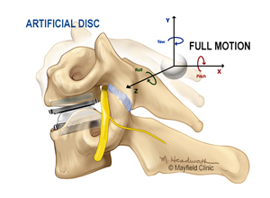 Artificial disc replacement illustration